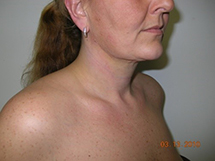 1 Day After Laser LipoTherme™ Lipo for Neck
