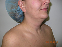 Before Laser LipoTherme™ Lipo for Neck