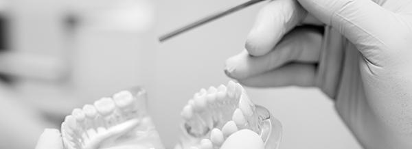 stomatologia_mierzyn_implantoprotetyka