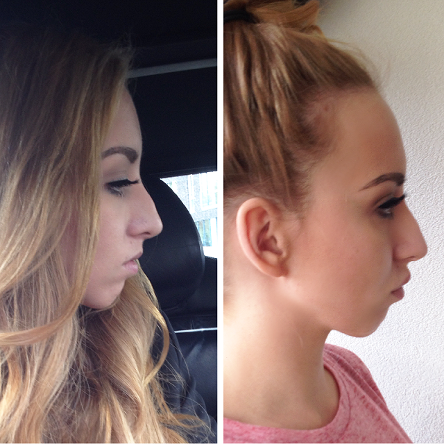 LIP AUGMENTATION | BEFORE & AFTER LIP FILLERS