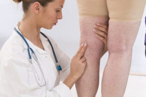 sclerotherapy traverse city mi