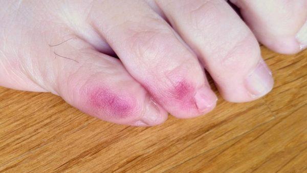 lesiones acrales violáceas covid-19