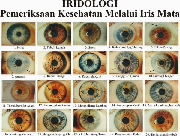 contoh diagnosa iridiologi